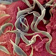 Моллюски паразиты кожи человека